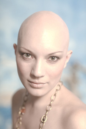There are many types of female baldness, and female baldness and hair loss can happen to any female, but in this photo, it was caused by a very rare genetic balding condition.