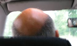 You can sometimes stop hair loss and regrow your hair by controlling a viscious cycle of male hair loss and baldness - toxins in diet may cause estrogen, body reacts by producing DHT, DHT causes baldness and hair loss in men.