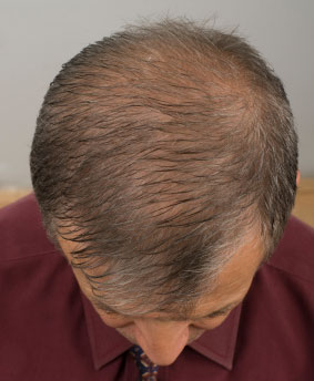 Men with Thinning Hair