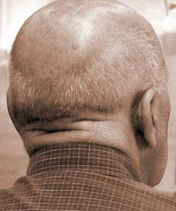 Here you can see an advanced case of male pattern baldness - baldness is medically known as alopecia.