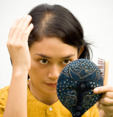 Young lady with balding spot on top of head
